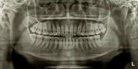 impacted: Dental Radiograph X-Ray