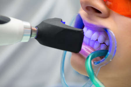 Girl patient in the dental clinic. Teeth whitening UV lamp with photopolymer composition. Banque d'images