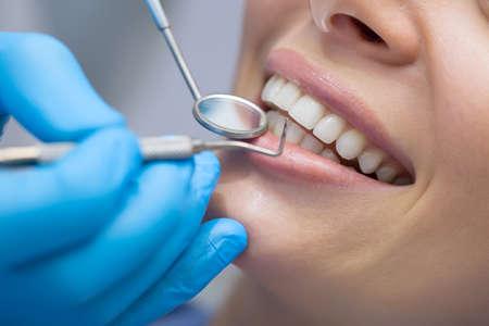 Flicka med vackra vita tänder på mottagning hos läkaren tandläkare.