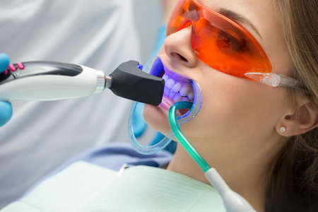 tooth: Girl patient in the dental clinic. Teeth whitening UV lamp with photopolymer composition. Stock Photo
