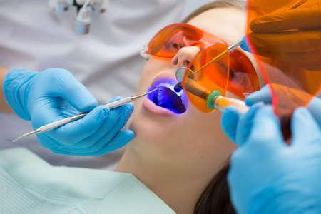 Patients Fille dans la clinique dentaire. Blanchiment des dents lampe UV avec la composition de photopolymère. Banque d'images - 51472966