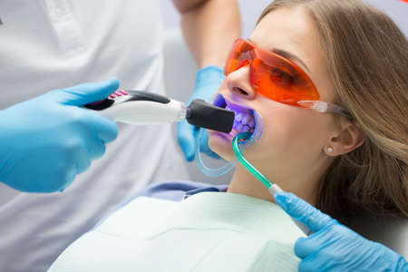 Girl patient in the dental clinic. Teeth whitening UV lamp with photopolymer composition. Zdjęcie Seryjne - 51472964