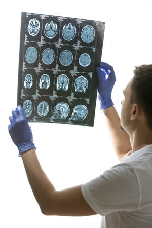 tomography: Male doctor in white uniform and blue latex gloves holds a tomography results in his hands. He looks at the tomography results. Phographed from the side. Studio photo on a gray background. Vertical. Stock Photo