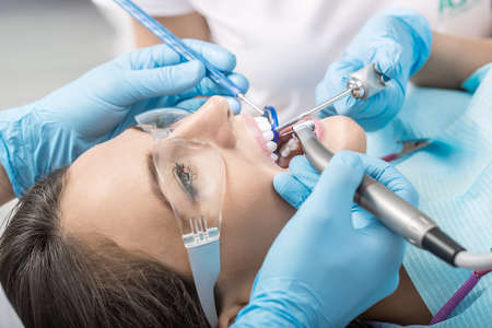 Very close photo of the teeth treatment in the dentists office. Girl with open mouth in a protective glasses, hands in blue medical gloves with dental instruments next to her mouth. Horizontal. Stock Photo