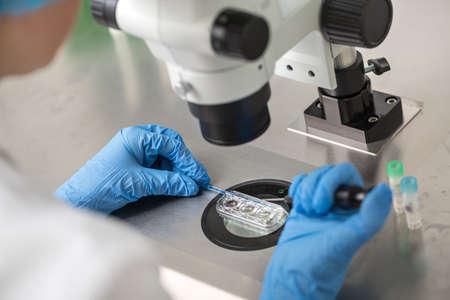 Comprobación del resultado de la fecundación in vitro Foto de archivo - 76084827