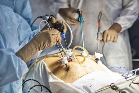 Laparoscopy operation process 스톡 콘텐츠