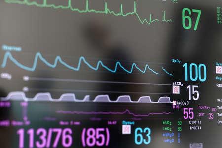 Closeup photo of EKG monitor