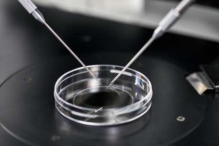 Process of in vitro fertilization in laboratory