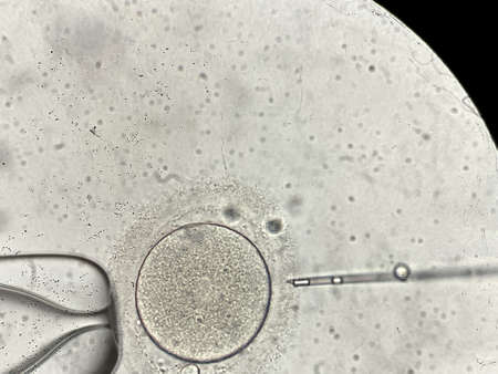 View through microscope at in vitro fertilization process