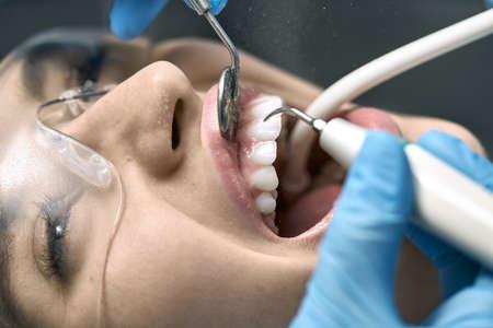 Pretty womans teeth cleaning in dental clinic Zdjęcie Seryjne