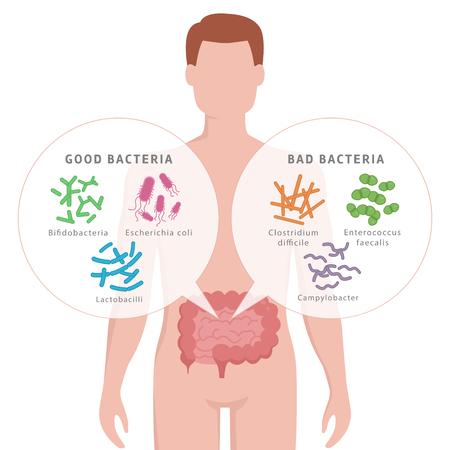 Bonnes bactéries et mauvaises bactéries dans les intestins humains. Bifidobactéries, lactobacilles, Escherichia coli, Campylobacter, Enterococcus faecalis, Clostridium difficile avec silhouette humaine isolé sur blanc.