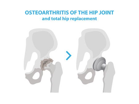 Osteoarthritis of the Hip Joint and Hip Replacement Surgery medical infographic elements isolated on white background. Joint with arthritis and replaces it with an artificial joint made from metal