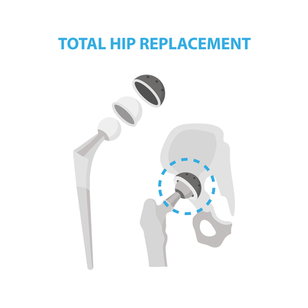 Osteoarthritis of the Hip Joint and Hip Replacement Surgery medical infographic elements isolated on white background. Artificial hip joint construction made from metal infographic elements.