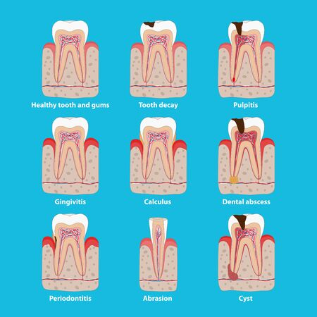Popular teeth diseases icons in flat design, vector medical illustration. Dental problems infographic elements isolated. Healthy and unhealthy teeth, tooth decay, pulpitis, periodontitis, calculus