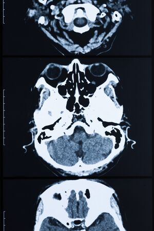 imaging: Medical healthcare X ray imaging of human brain skull bones xray Stock Photo