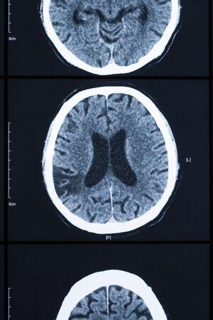 medical imaging: Medical healthcare X ray imaging of human brain skull bones xray Stock Photo