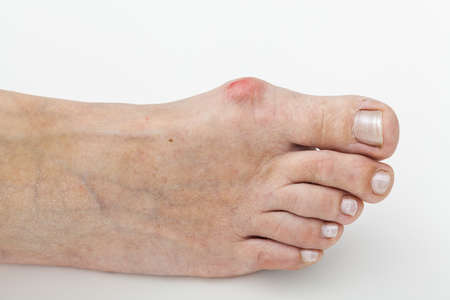 bunion: Closeup of a bunion, hallux on foot Stock Photo