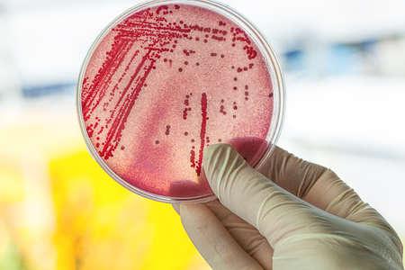 ペトリ皿に赤い細菌と、実験室の仕事