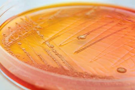 Close-up van een oranje bacteriën in een petrischaal