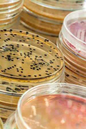 Agar plate full of colourful micro bacterias and microorganisms Stock Photo