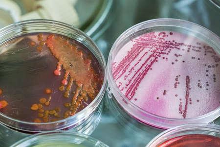 ペトリ皿とバクテリアの化学プロセス