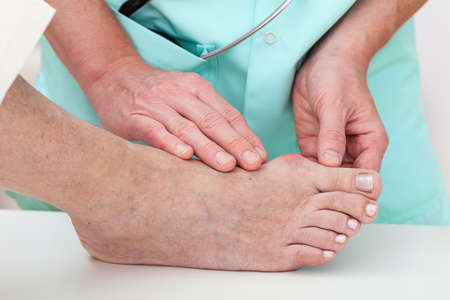 bunion: Nurse checking problems with foot - hallux, closeup