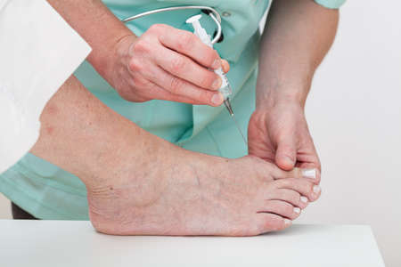 foot doctor: A patient having an injection done by a doctor