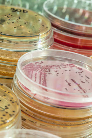 drug discovery: Holded in petri glasses acterias testing in laboratory