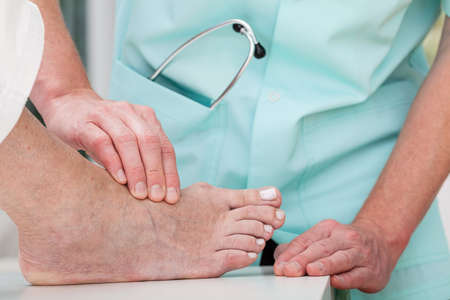 bunion: A doctor massaging a patients ill foot