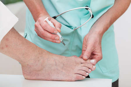 bunion: Woman getting an injection to a bunion