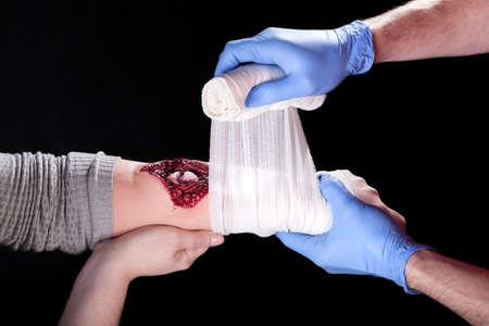 A closeup of bandaging a disgousting deep wound on an arm Фото со стока