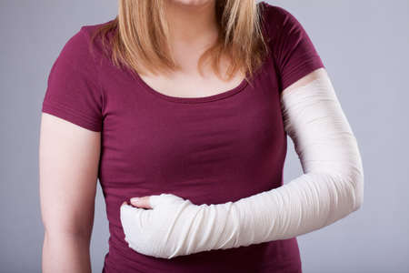 broken arm: A closeup of a woman with a hurt bandaged arm Stock Photo