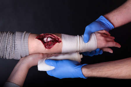 herida: Primer plano de paramédico vestir una herida