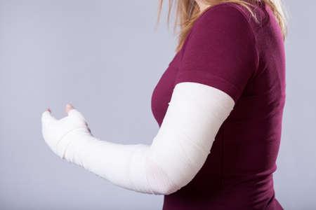 roto: Primer plano de la chica joven con el brazo roto