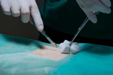 ombligo: Primer plano de la operación en el área de ombligo