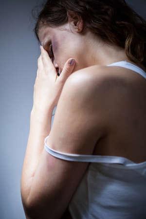 violencia intrafamiliar: Aterrorizado v�ctima desesperaci�n de la violencia con moretones