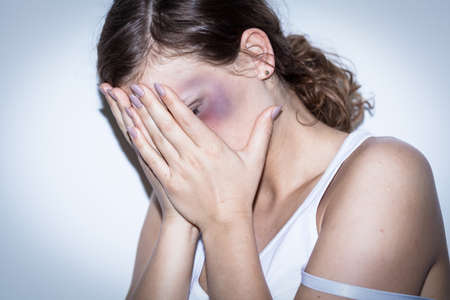 beat women: Mutilated women cover her bruised face with shame