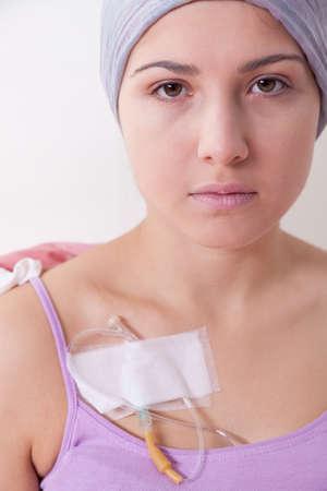 leucemia: Muchacha hermosa joven que sufre de cáncer