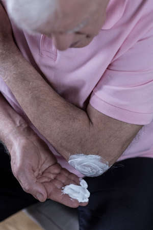 ointment: Senior man using ointment to relieve pain Stock Photo