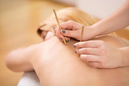 acupuncture needles: Therapist doing acupuncture to young pretty woman Stock Photo