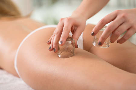 cupping therapy: Close-up of young womans anti-cellulite cupping therapy Stock Photo
