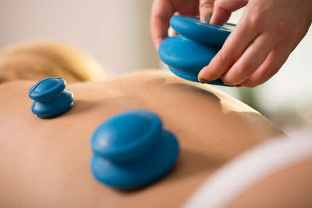 Close-up of woman having cupping therapy Stock Photo