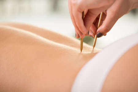alternative wellness: Close-up of acupuncture on young womans back Stock Photo