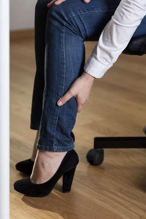 sedentary: Mujer con tacones altos las v�rices de las piernas Foto de archivo