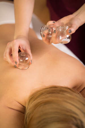 cupping therapy: Close-up of woman relaxing during cupping massage
