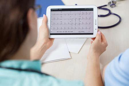 electrocardiograma: Primer plano de médico busca de mujeres en el electrocardiograma del paciente Foto de archivo