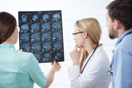 health care: Three experienced physicians checking head magnetic resonance image Stock Photo