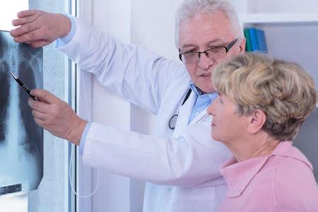 Hogere vrouw met longkanker tijdens medische bezoek Stockfoto