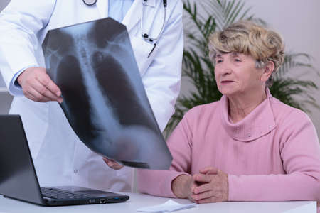 radiogram: Doctor showing and explaining patient chest x-ray