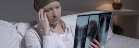 despairing: Despairing woman with brain cancer looking at x-ray photo Stock Photo